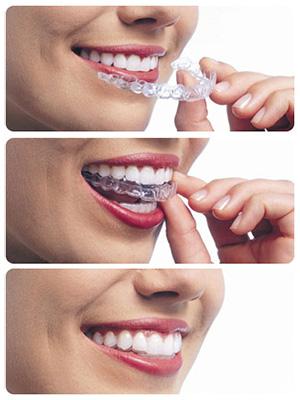 Overbite Correction | Kraus Orthodontics | Allen TX ...